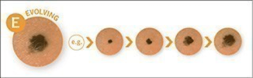 evolving melanoma