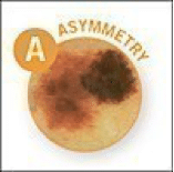 asymmetry melanoma
