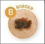 border melanoma