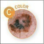 color melanoma