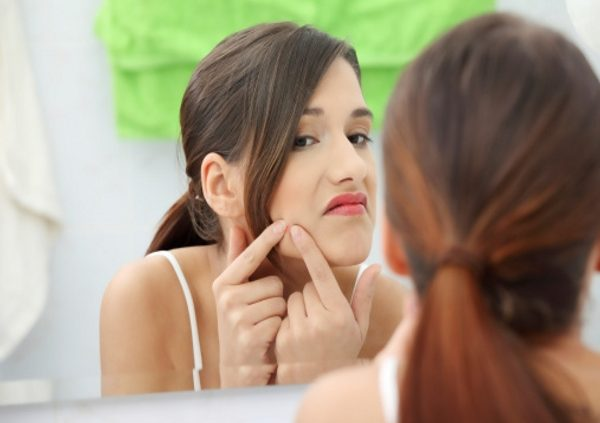 Stress can cause acne