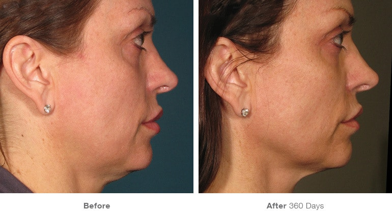 Facial Tightening Ultherapy Results