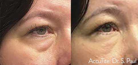 AccuTite Before and After 2