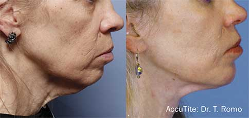 AccuTite Before and After 3