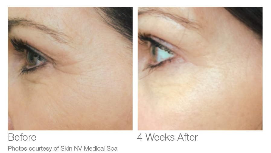 VersaLift Before and After Results