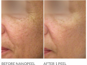NANO Laser Peel Before and After Image 1